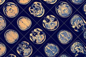 Brain sections picture